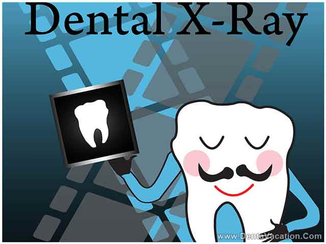 dental-x-ray