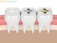 Dental Fillings- Composite, Amalgam: Silver, Gold Filling