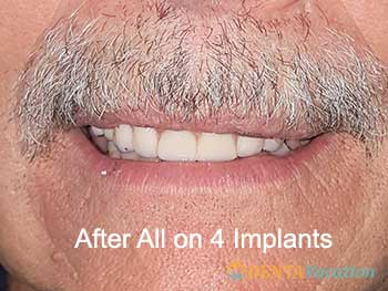 After All-on-4-Dental-Implants