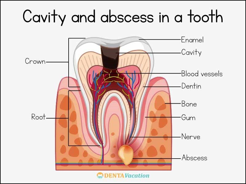 Root Canal Treatment Cavity and Abscess