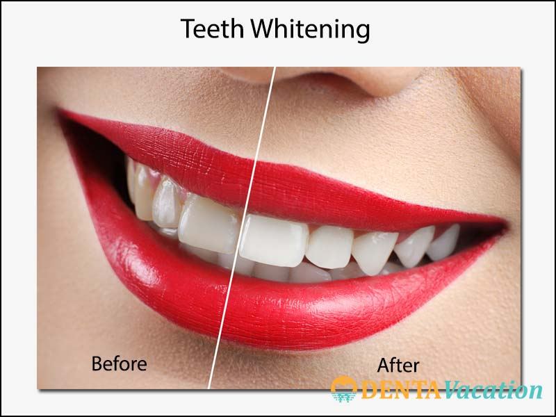 Teeth Whitening Abroad Before-and-After