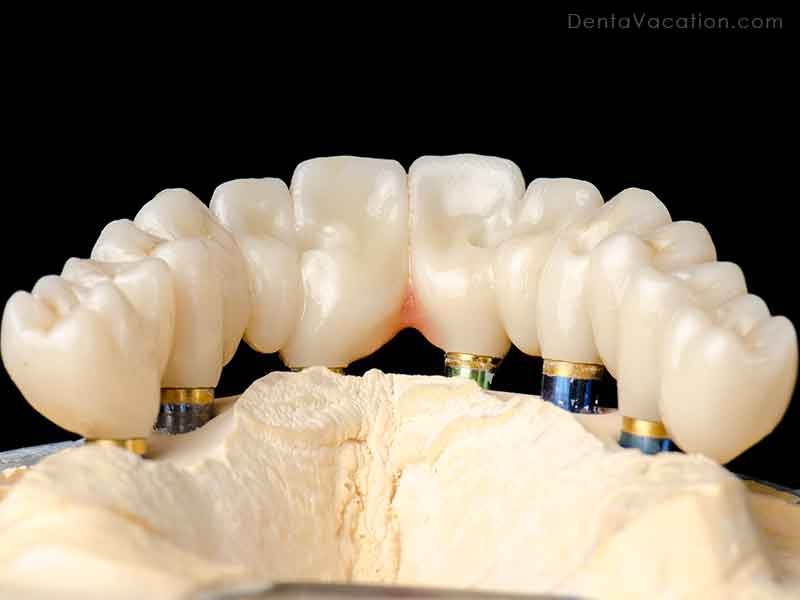 Bridge on All on 6 dental Implants abroad